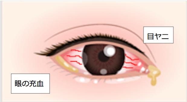 ウイルス性結膜炎