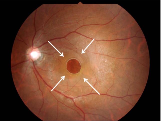 ⻩斑円孔 の眼底写真