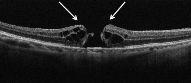 ⻩斑円孔 の光干渉断層計(OCT)